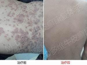 郑州银屑病治疗