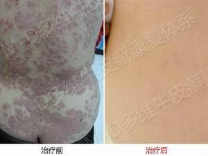郑州牛皮癣医院专科治疗牛皮癣