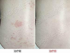 郑州牛皮癣治疗专科医院