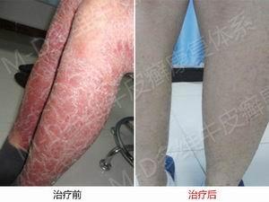 郑州银屑病医院专科治疗银屑病