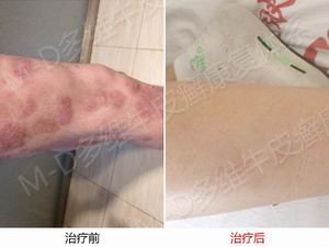 河南郑州牛皮癣医院