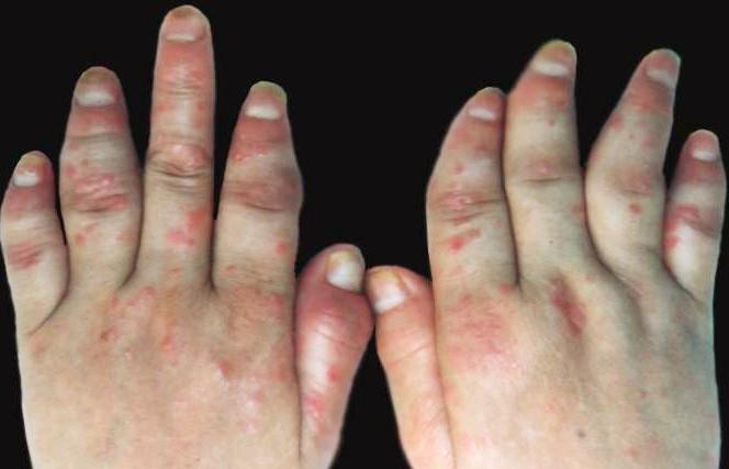 关节型牛皮癣的初期症状