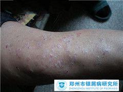 出汗有助于牛皮癣患者的治疗