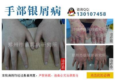 手部牛皮癣患者要注意什么