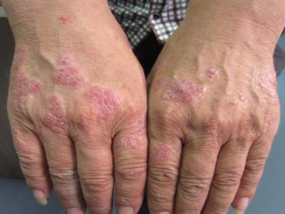 皮肤发痒有红斑是牛皮癣的症状吗